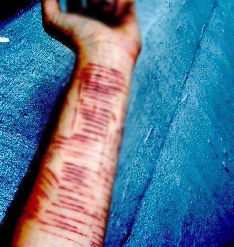 Vết cắt trên tay nữ sinh